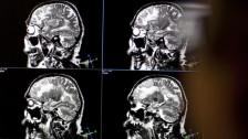 Audio «Wie sicher sind Kontrastmittel bei MRI-Scans?» abspielen