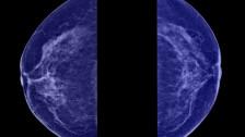 Audio «Input Kompakt: Methadon gegen Krebs: Was bleibt vom Heilsversprechen?» abspielen
