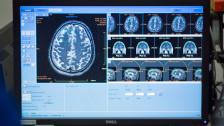 Audio «Fortschritte bei Alzheimer-Forschung» abspielen