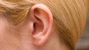 Audio «Spitze Ohren» abspielen.