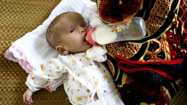 Dieses Neugeborene kann seine Augenlieder nicht öffnen. Bis heute sind die Spätfolgen des Chemiewaffeneinsatzes in Vietnam noch spürbar.