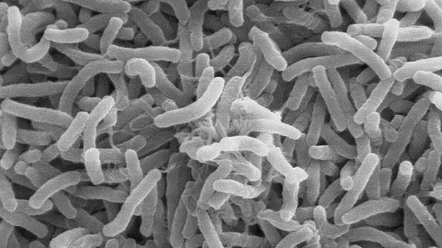 Cholera-Bakterien.