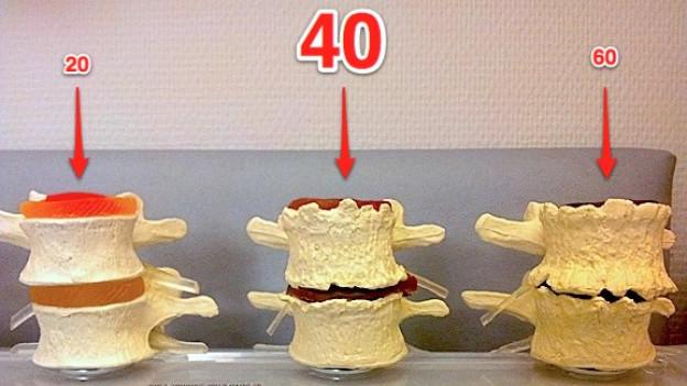 Brutale Wahrheit: Ab 40 sind unsere Wirbel nicht mehr so geschmeidig, wie sie es einmal waren.