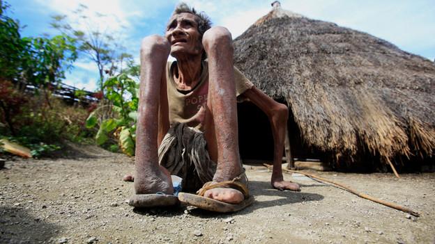 Ein Leprakranker in Osttimor: Lepra ist eine der ältesten bekannten Krankheiten und bis heute nicht ausgerottet.