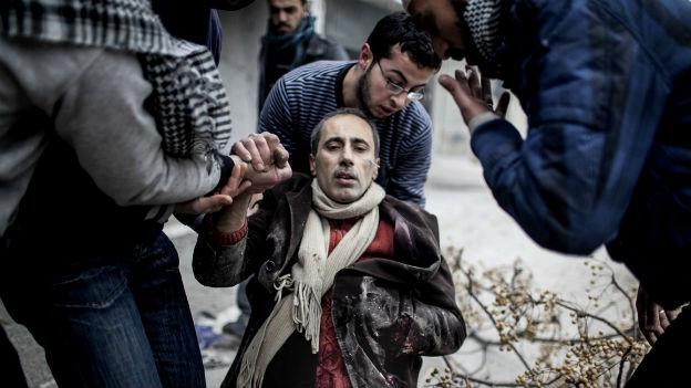 Ein verwundeter Zivilist im syrischen Aleppo. Kriegsverbrechen in Syrien sollen vors Kriegsverbrechertribunal.