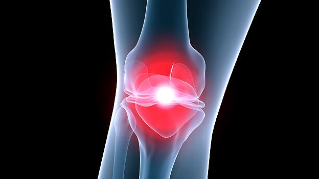 Schmerzhafte Arthrose im Kniegelenk.