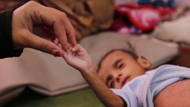 Eine Mutter mit ihrem unterernährten Kind in einem Krankenhaus in Sanaa.