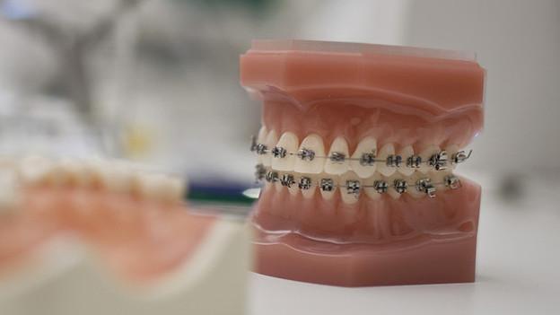 Bild eines Zahnabdrucks samt Zahnspange.