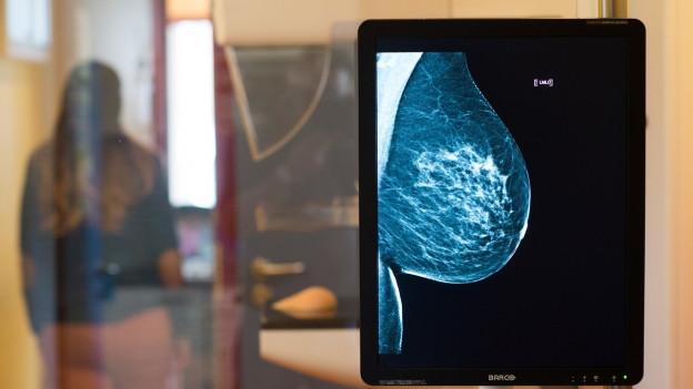 Mammographie-Screening