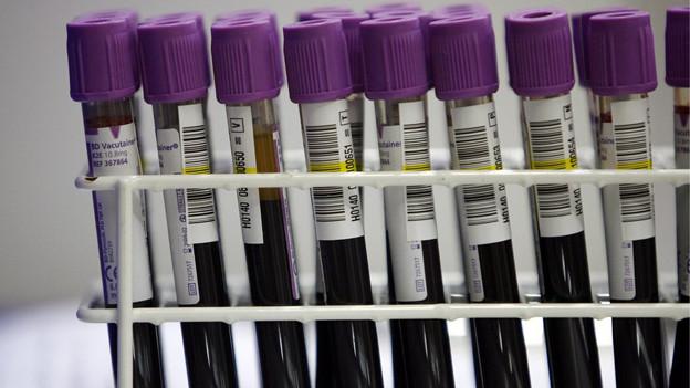 Im Berner «Heiler»-Prozess zweifelt der Angeklagte die Untersuchungsergebnisse der Blutproben an.