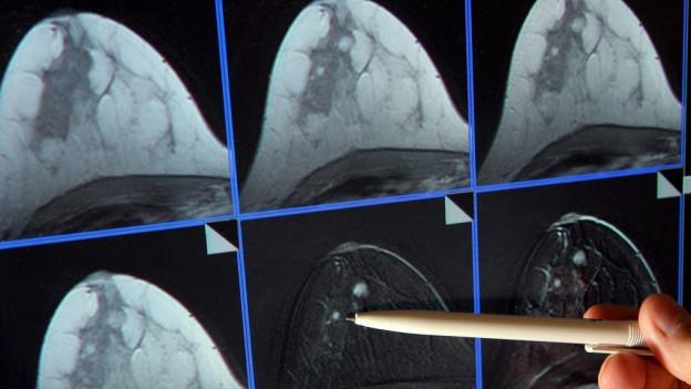 Mammografie-Skreening im Kanton Bern auf dem Prüfstand.
