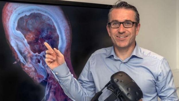 Professor Philippe Cattin hat eine spektakuläre Software entwickelt.