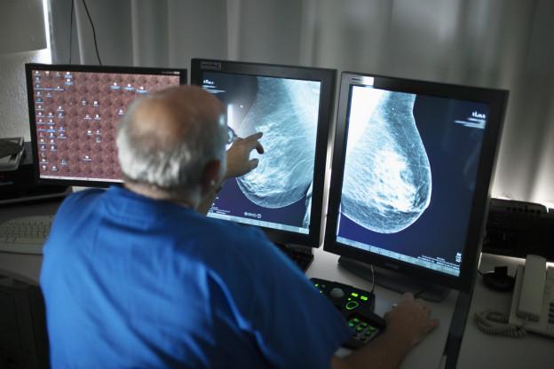 In Luzern sollen ältere Frauen regelmässig zum Brustkrebs-Untersuch