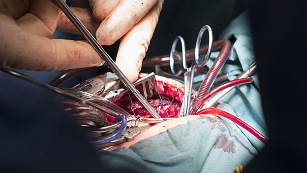 Hochspezialisierte Operationen dürfen nicht mehr in allen Spitälern durchgeführt werden