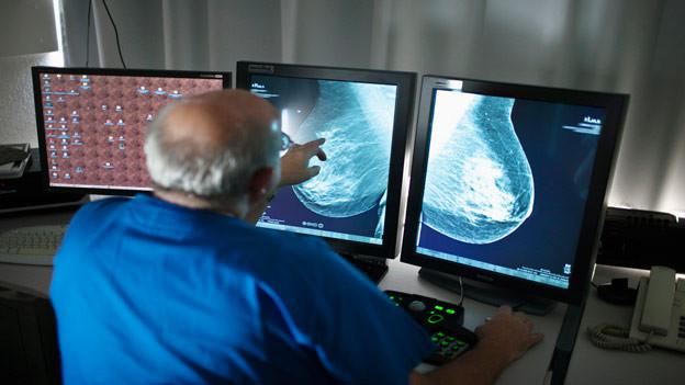 Mammografie-Programme für Frauen werden kritisiert
