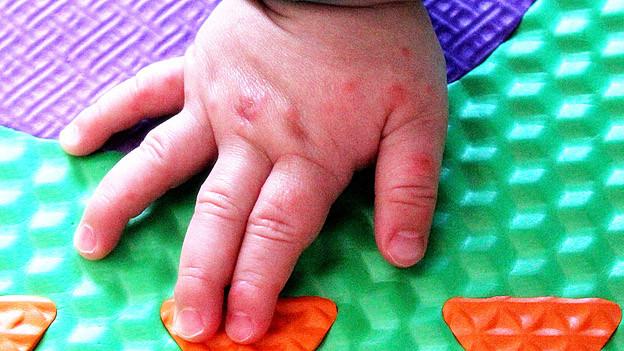 Eine Kinderhand übersäht mit Blasen.