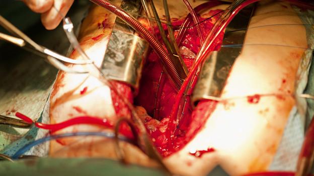 Herzoperation am Kinderspital Zürich.