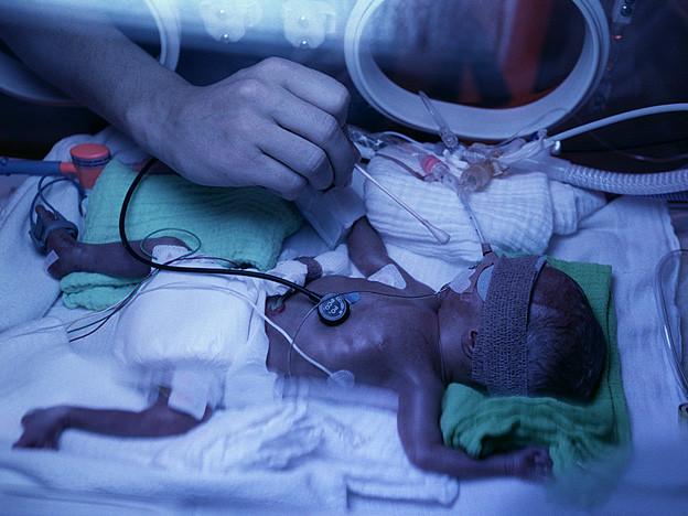 Ein frühgeborenes Kind in der Klinik