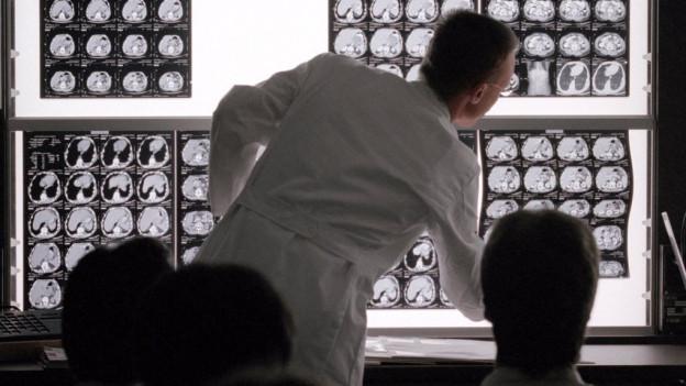 Ein Arzt erklärt Röntgenaufnahmen vom Hirn.