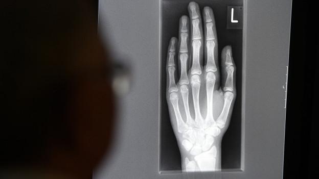 Radiografia dad in maun dad ina persuna giuvna