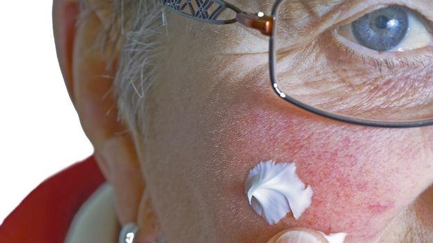 Rund 30 Prozent aller Menschen leiden bis ins höhere Alter unter Akne.