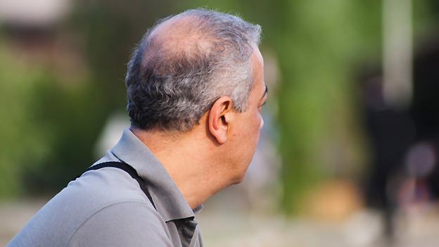 Männer leiden etwas häufiger unter Haarausfall als Frauen.