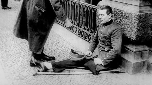 Soldat mit amputiertem Bein
