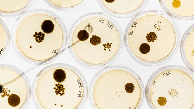 Petrischalen mit Bakterienkolonien.