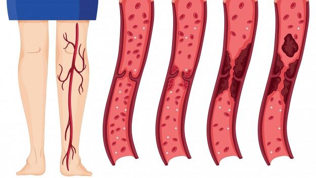 Beine mit Blutgefässen, einzelne Gefässe die zeigen, wie Thrombose entsteht