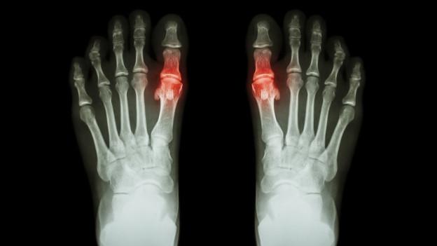 Röntgenbild Füsse mit rot markierten grossen Zehen