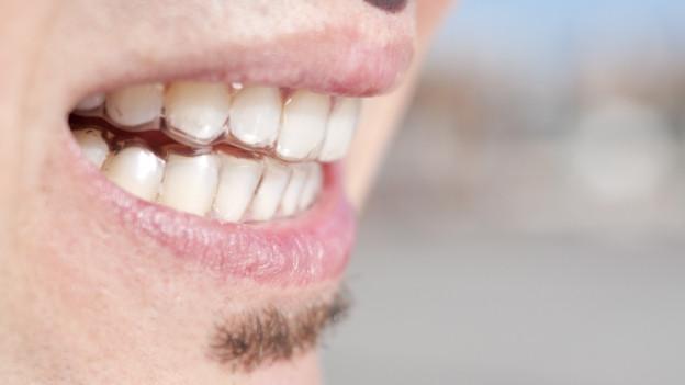 Mann mit durchsichtiger Zahnschiene.