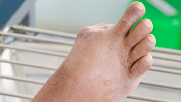 Ein Fuss, mit einem amputierten Zehen.