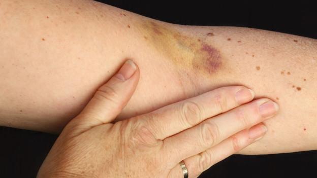 Frau mit baluem Fleck am Arm