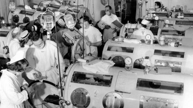 Polio Patienten in der Eisernen Lunge mit ärztlichem Personal