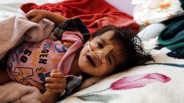 Ein Kind liegt verletzt in einem Bett im Spital.