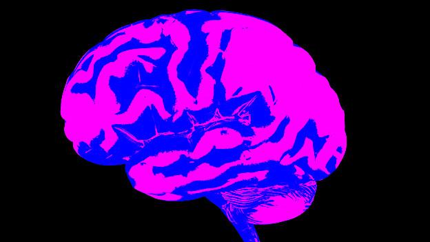 computertomographische Aufnahme des Gehirns