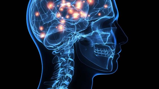 Schematische Darstellung eines Menschen, dessen Knochen und Gehirn sichtbar sind. Im Gehirn leuchten orangfarbene Punkte auf.