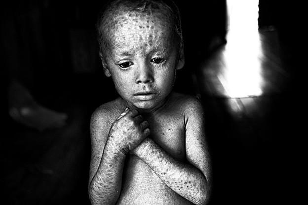 Schwarzweissfotographie eines Kindes, das verstört in die Kamera schaut und mit Flecken übersäht ist