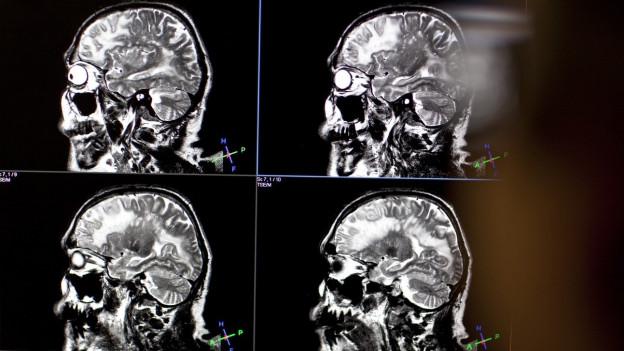 Besser? MRI-Untesuchung ohne Kontrastmittel.