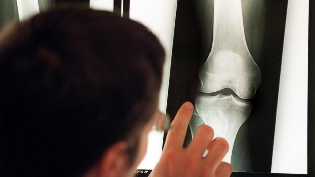 Mann zeigt mit Finger auf ein Röntgenbild.