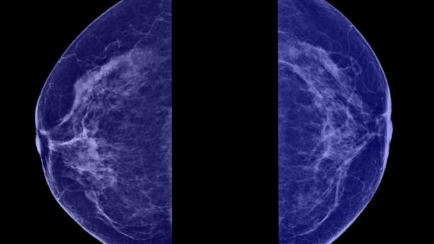 Bei rund 30% aller Krebserkrankungen bei Frauen handelt es sich um Brustkrebs.