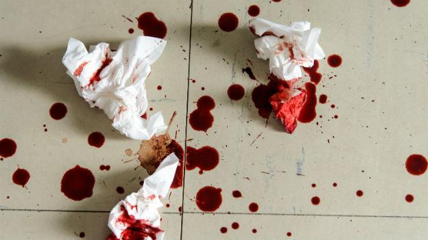 Bluttropfen auf dem Boden