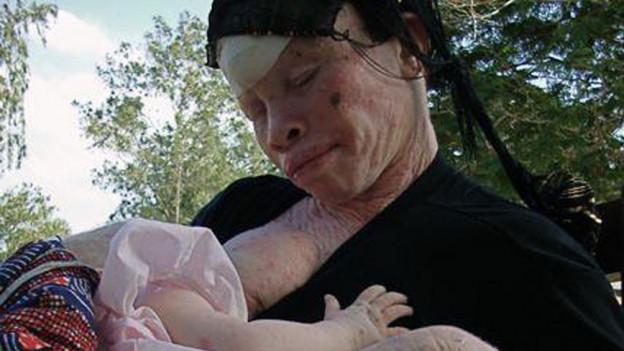 Aufnahme einer Albinofrau, die ihr Kind am Stillen ist.