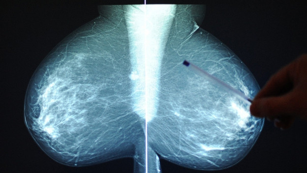 Ein Bruströntgenbild. In vielen Kantonen werden Mammografien gratis angeboten.