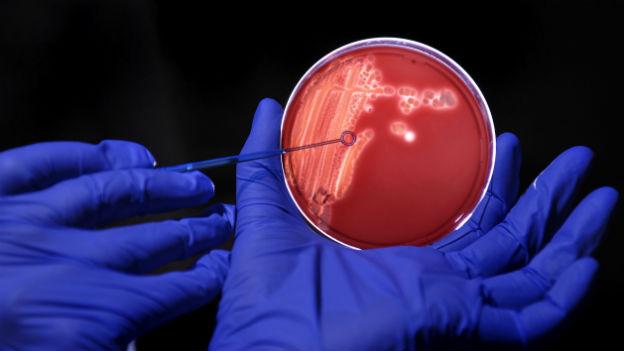 Darm-Bakterien – sie werden besonders oft resistent gegen Antibiotika.