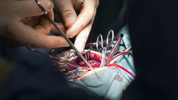 Chirurgen führen eine Herzoperation durch.