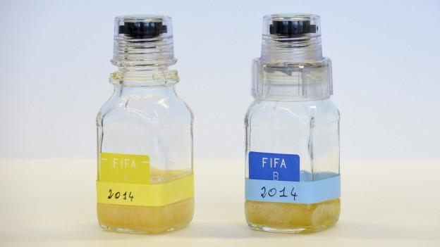 Aufnahme von zwei Urinproben in Plastikfläschchen.