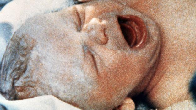 Louise Brown , erstes Retorten-Baby.