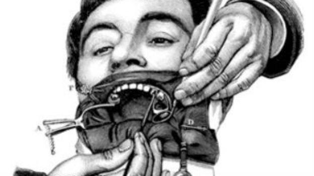 Das Zahnimplantat, der Retter in der Not.