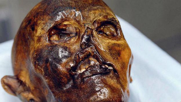 Beachtliches Alter: Ötzi, geboren vor über 5000 Jahren.